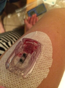 Second bleeder in a row, twice in the same week.  Hazards of water park trips on birthdays.  Sensor had to be replaced.